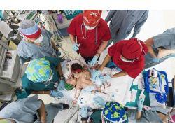 Siyam İkizleri 26 Saatlik Operasyonla Ayrıldı