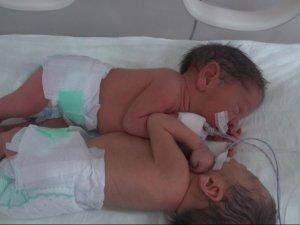Siyam İkizleri Başarılı Ameliyatla Ayrıldı