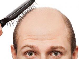 Saç Dökülmesi Nedenlerine Dikkat!