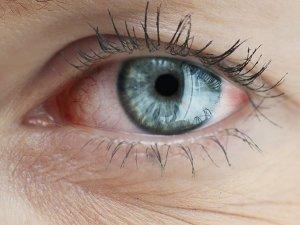 Menopoz Sonrası Kuru Göz Riski