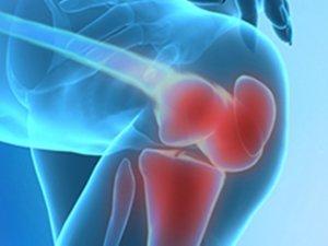 Kalça ve Diz Protezleri İle Eve Bağımlılıktan Kurtulabilirsiniz