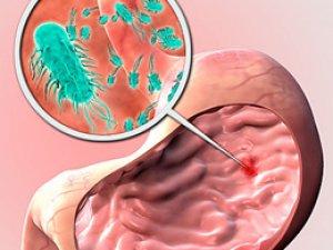 Dünyanın Yarısı Helikobakter Riskiyle Karşı Karşıya