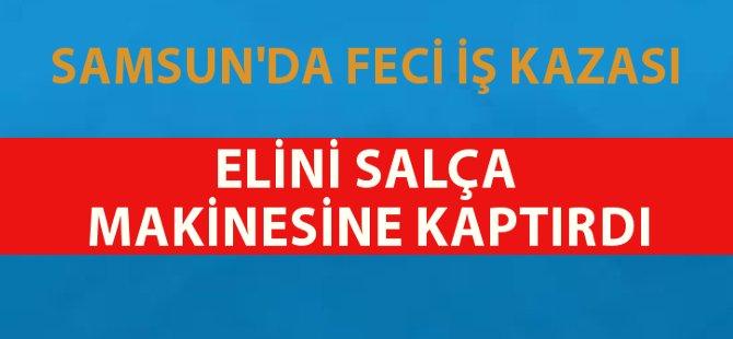 Samsun'da Feci İş Kazası Elini Salça Makinesine Kaptırdı