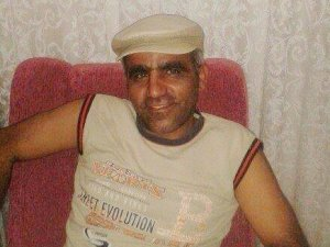 Antalya'da Yüz Nakli Yapılan Kişiye Cinayet Suçundan Dava Açıldı