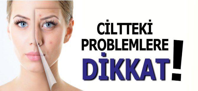 Ciltteki Problemlere Dikkat