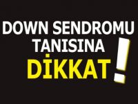 Down Sendromu Tanısına Dikkat